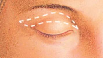 eyelid surgery houston,eyelid surgery houston texas,eyelid surgery houston cost,eyelid surgeons houston,eyelid surgery houston tx