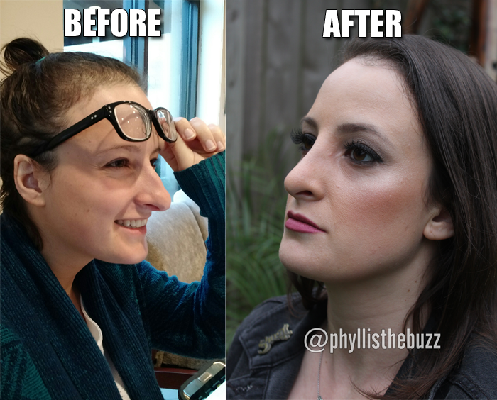 phyllis-rod-ryan-show-nose-job-before-after-photo-houston
