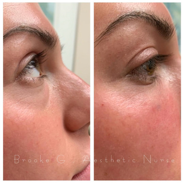 Dermal Fillers - Utopia Plastic Surgery and Med Spa