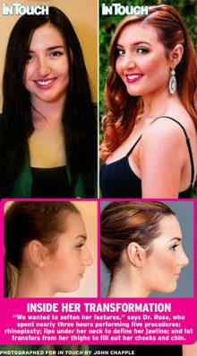 ashley-lohan-rhinopasty-by-dr-rose-houston-texas